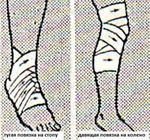 перевязки на стопу и колено