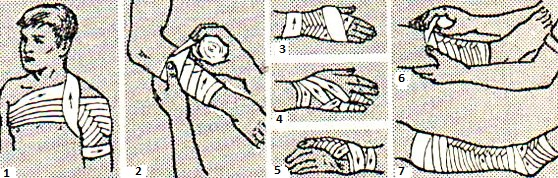 перевязки рук и ног